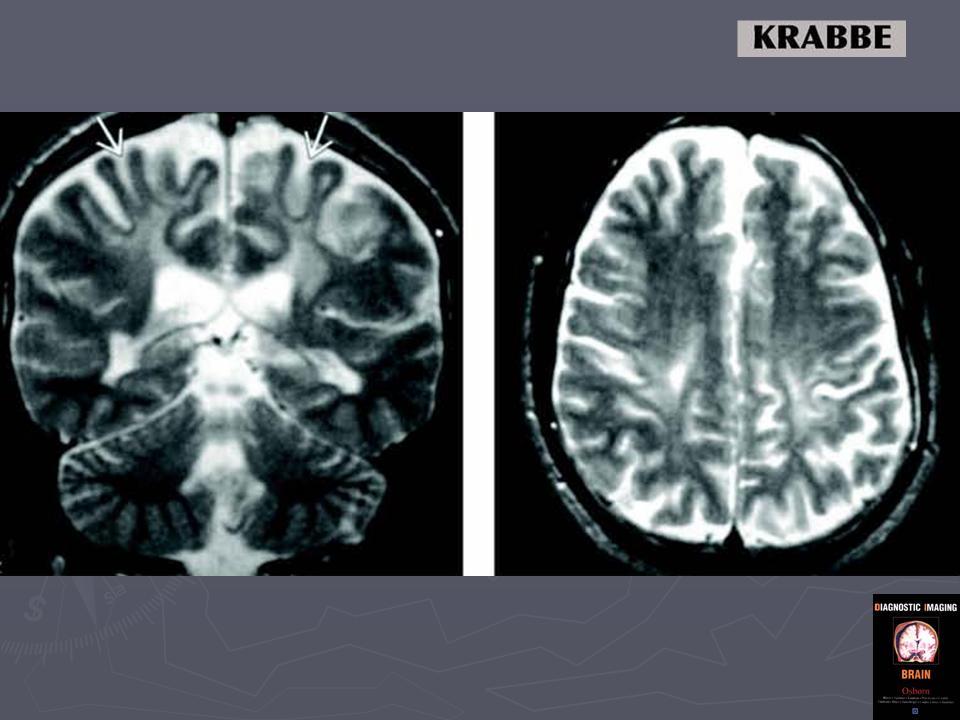 Резкая головная боль у ребенка 9 лет