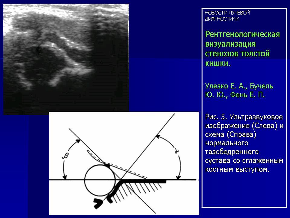 Тип суставов 2a по графу мази для лечения артроза коленного сустава