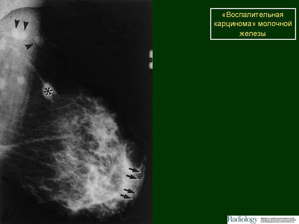 Как лечить инфильтративный рак молочной железы