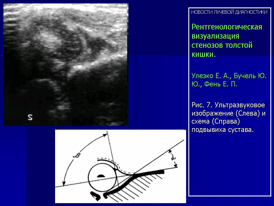 Узи диагностика дисплазии тазобедреного сустава синовит акромиально ключичного сустава