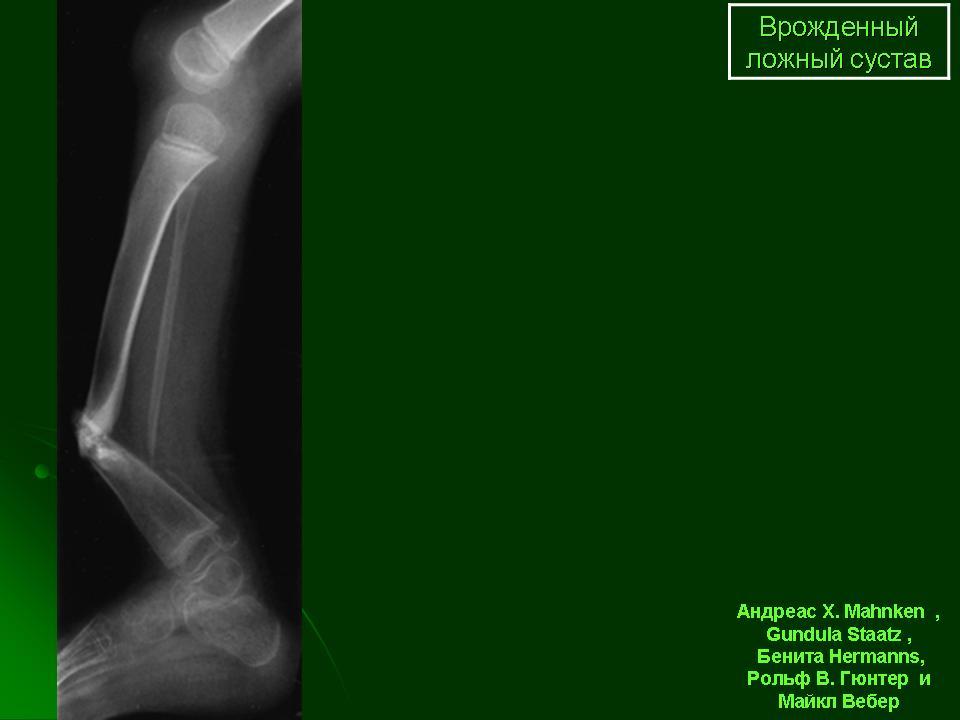 Латентная форма несостоявшегося ложного сустава лечение артроза тазобедренного сустава желатином отзывы
