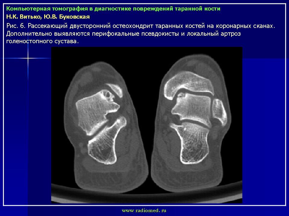 Компьютерная томография переломов
