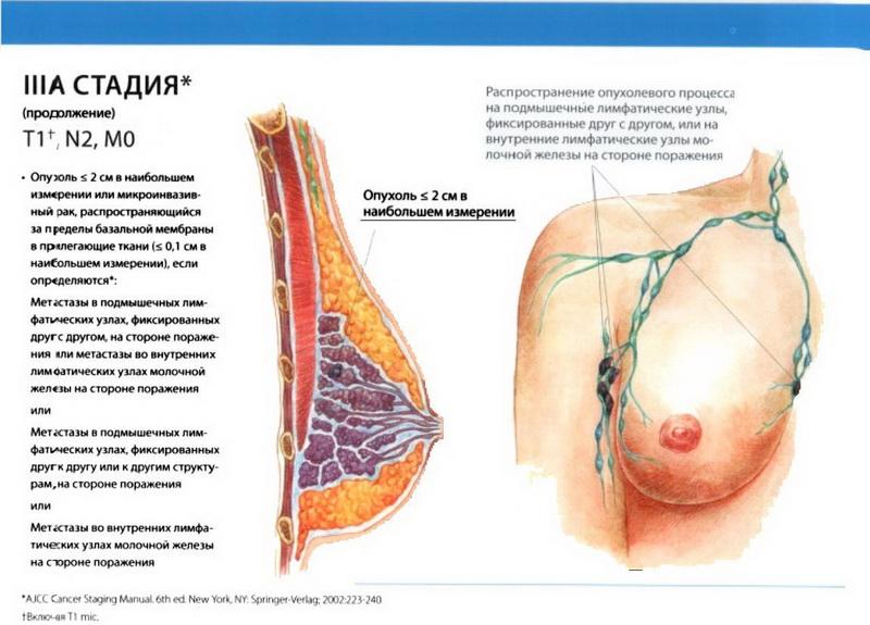 Рак молочной железы симптомы и признаки стадии